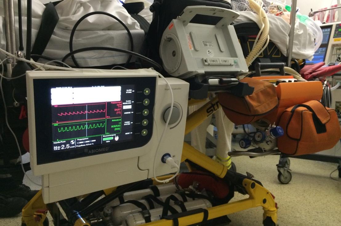 Impella Heart Device Einsatz beieCPR