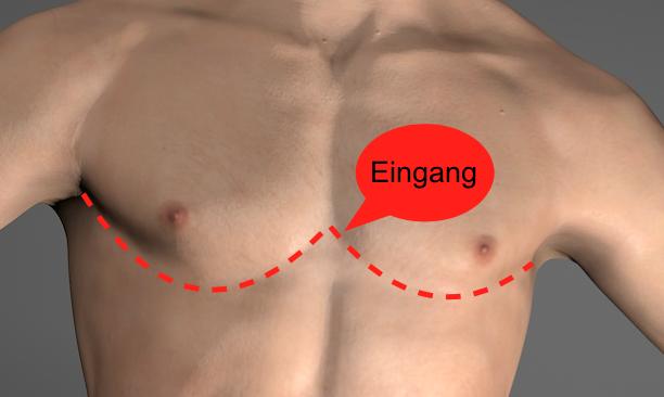 Lebensretter Teil II:Thorakotomie